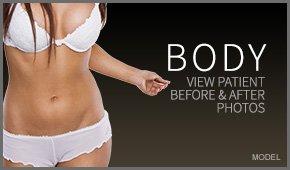 body photo gallery