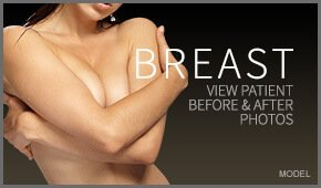 breast photo gallery