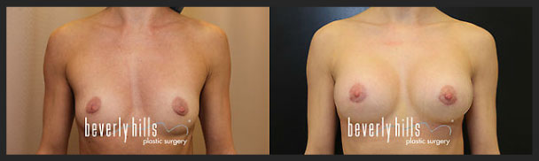 Before and after female breast augmentation-2
