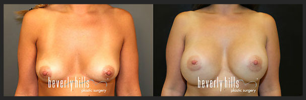 Before and after female breast augmentation-3