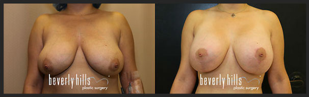 Before and after female breast augmentation-4