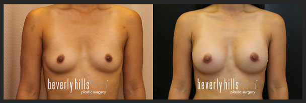 Before and after female breast augmentation-5