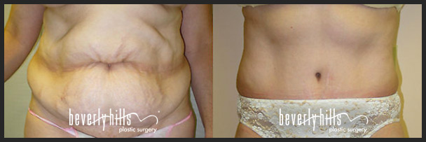 Before and after tummy tuck female-3