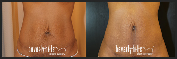 Before and after tummy tuck female-5