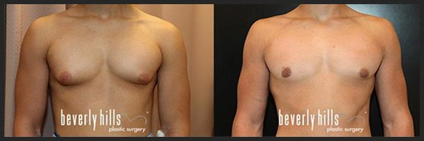 Before and after male breast augmentation (gynecomastia treatment) example #1