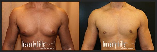Before and after male breast augmentation (gynecomastia treatment) -2