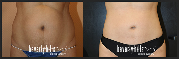 Before and after female liposuction (front)-4