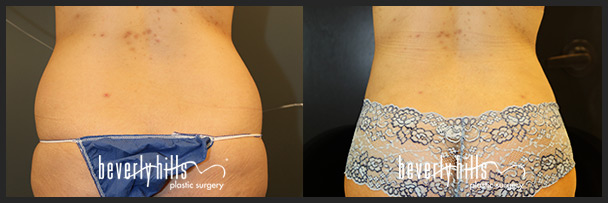Before and after female liposuction (front)-5