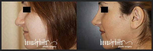 Before and after rhinoplasty (nose job) female example #1