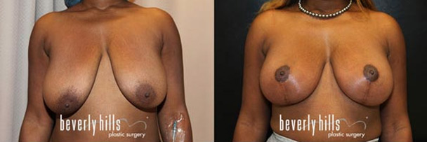 before and after breast lift-2