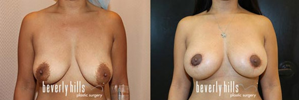 before and after breast lift-3
