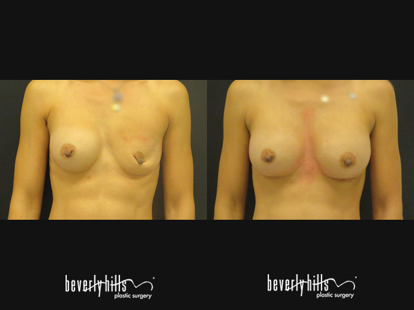 Breast Revision Before After