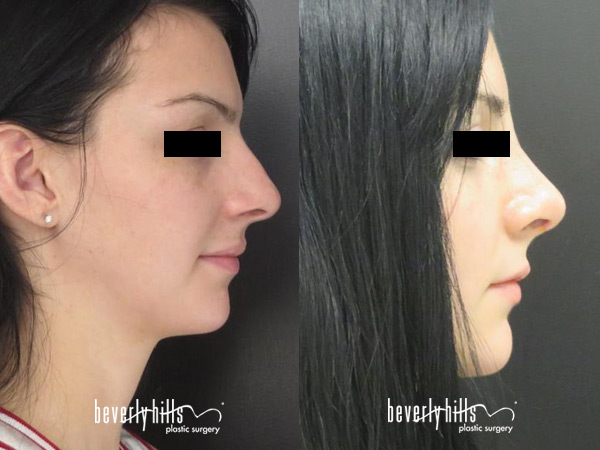 rhinoplasty-patient1-2015