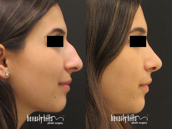 Nose Procedures Photo Gallery Beverly Hills Plastic Surgery