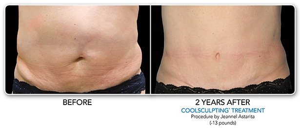 Before and After coolsculpting-1