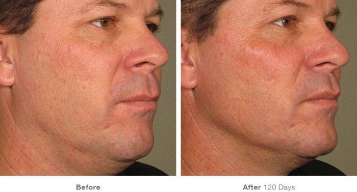 Before and After ultherapy- 1