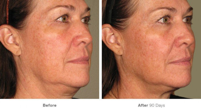 Before and After ultherapy- 2