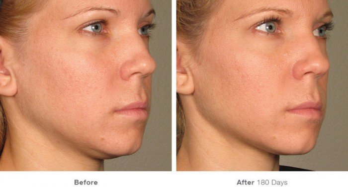 Before and After ultherapy- 5
