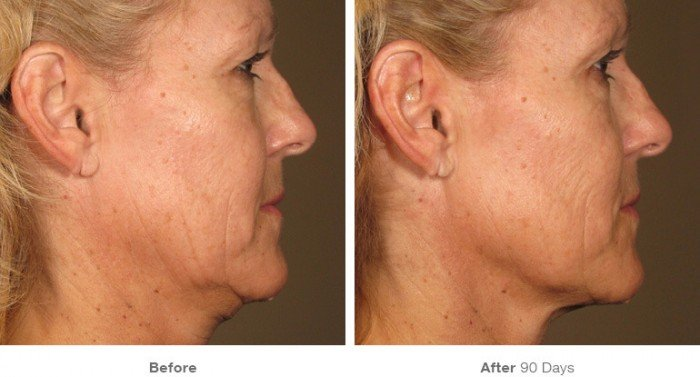 Before and After ultherapy- 4