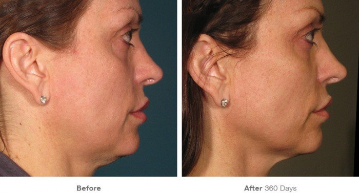 Before and After ultherapy- 3