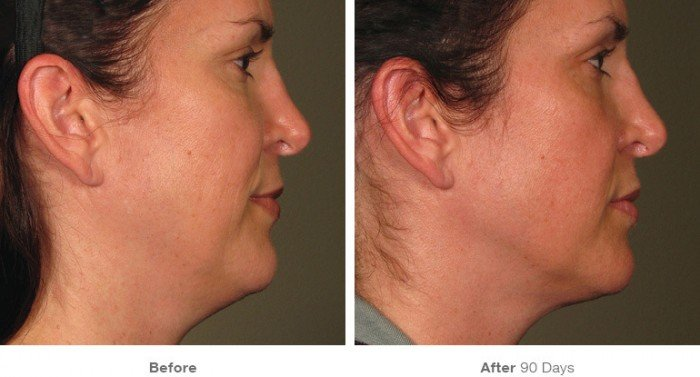 Before and After ultherapy- 6