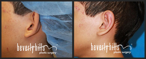 Ear Surgery Before After