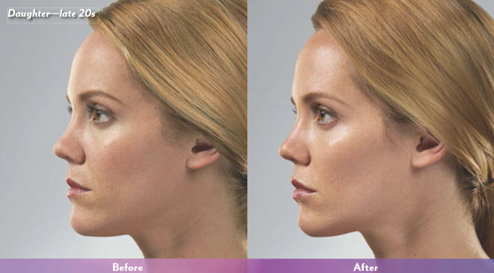 juvederm-before-after-2