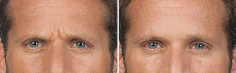 stephen-botox-before-after