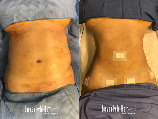 liposuction110