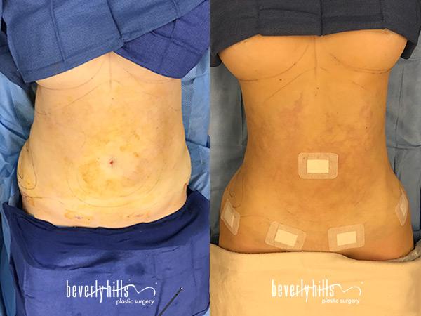 liposuction111