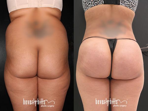 liposuction112