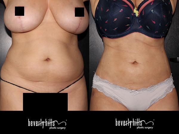 liposuction114