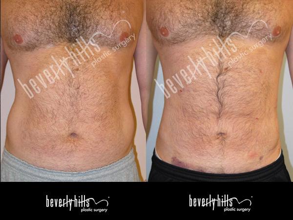 liposuction115