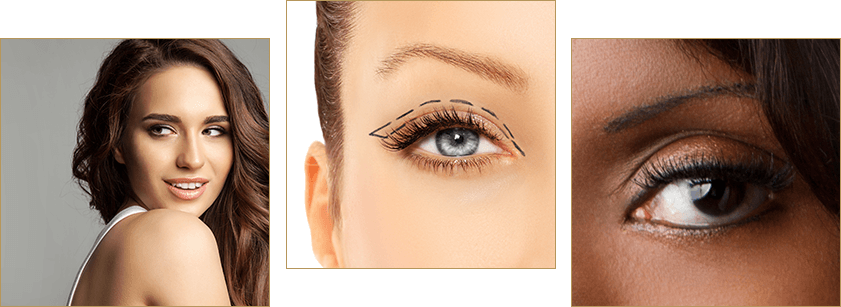 eyelid surgery benefits Beverly Hills