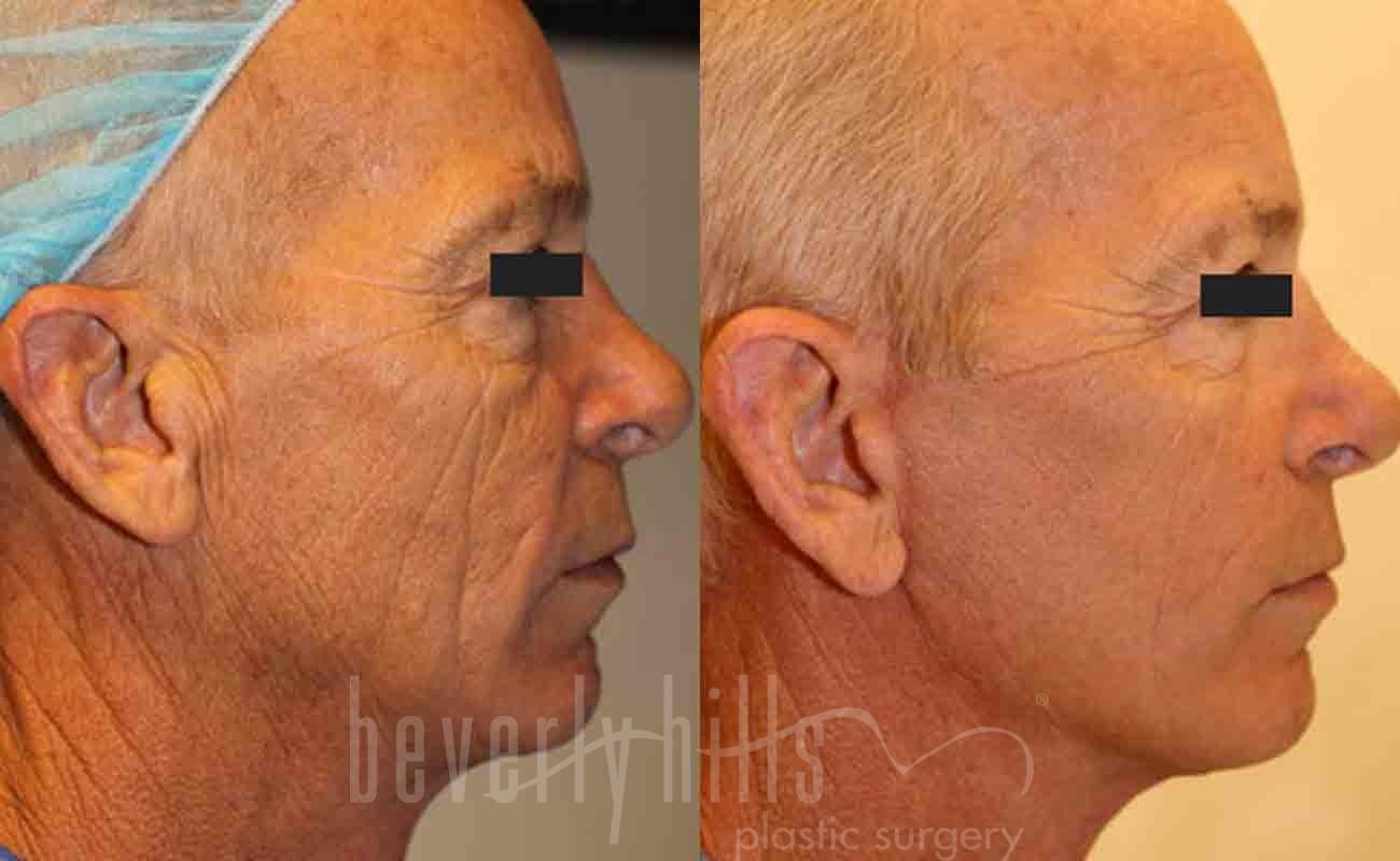 ba-face-lift-p0001-img-blog