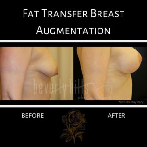 Using fat transfer for breast augmentation often results in breasts that are visibly fuller, as shown in this before and after shot.