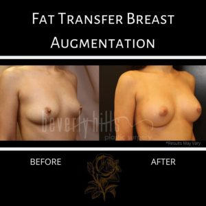 The fat that survives transfer becomes a permanent part of breast tissue, results in visibly larger breasts, as show in this before and after image.