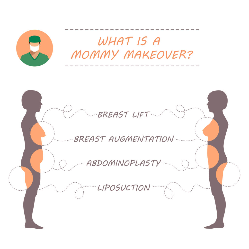 Vector illustration demonstrating the four most common plastic surgery procedures included in a Mommy Makeover.