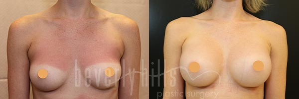 Breast Augmentation Patient 92 Before & After