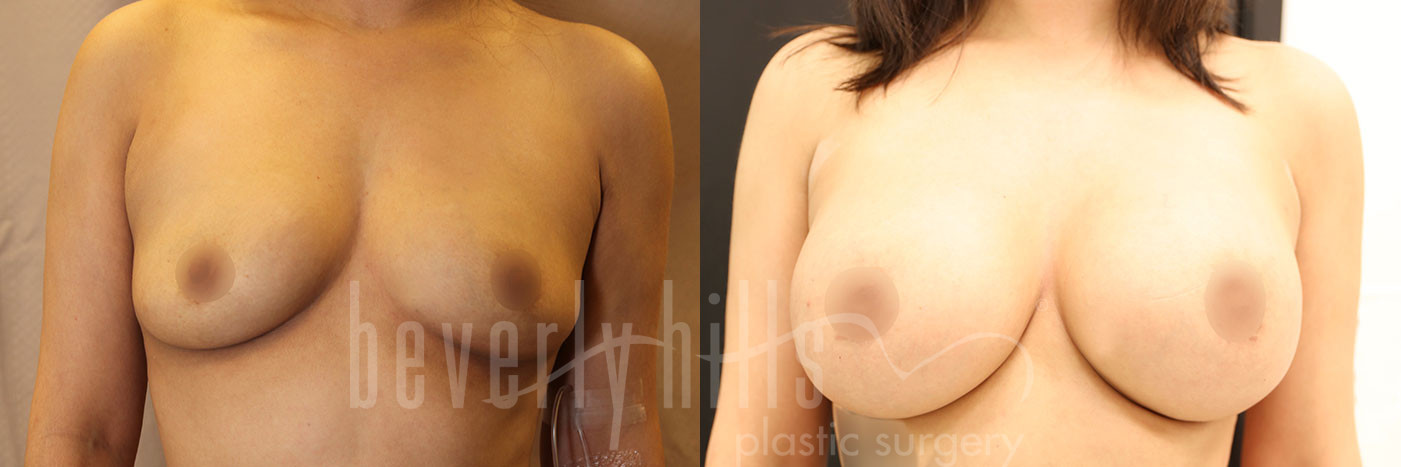 Breast Augmentation Patient 95 Before & After