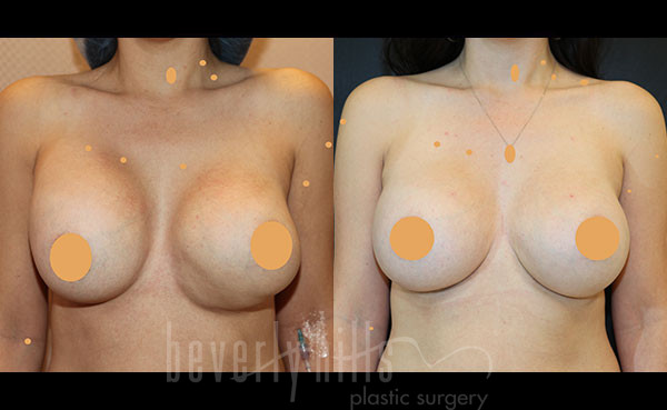 Cosmetic Breast Reconstruction Patient 03 Before & After