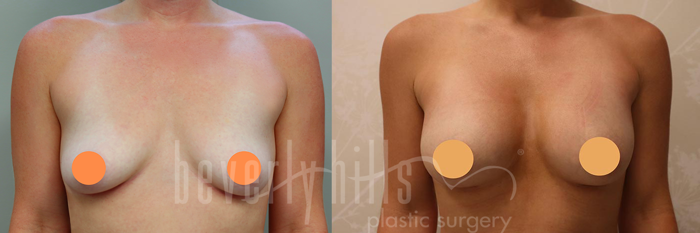 Breast Augmentation Patient 98 Before & After