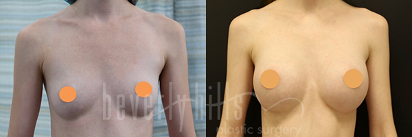 Breast Augmentation Patient 96 Before & After