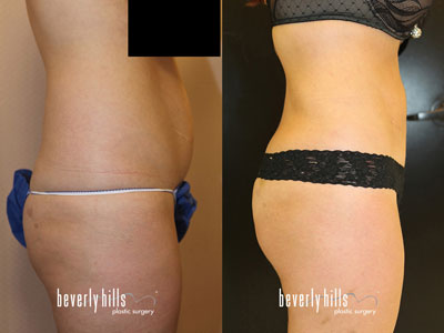Liposuction-120938b