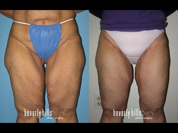 thigh-lift-1423217890