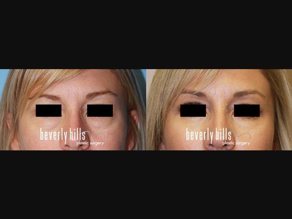 Eyelid-0901238