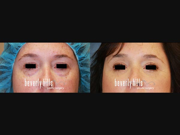 Eyelid-0901239