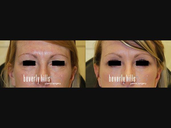 Eyelid-0901240