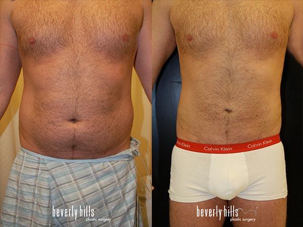 body-male-02a_04-24-2015