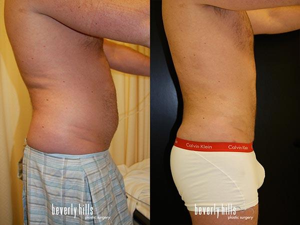 body-male-02b_04-24-2015